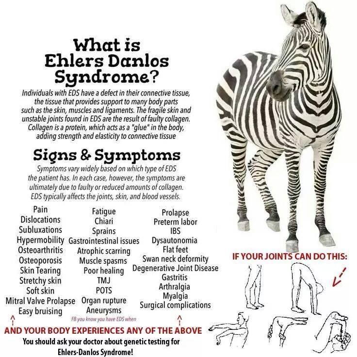 a31735a0cd What is Ehlers-Danlos Syndrome