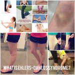 What are Ehlers-Danlos syndromes (EDS)?