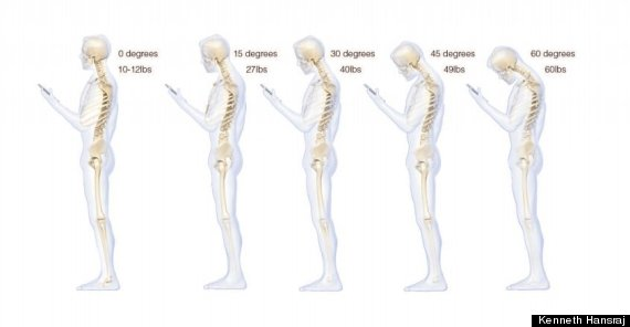 texting-hurts-spine
